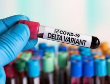 Covid-19 : ce qu'il faut savoir sur le variant Delta